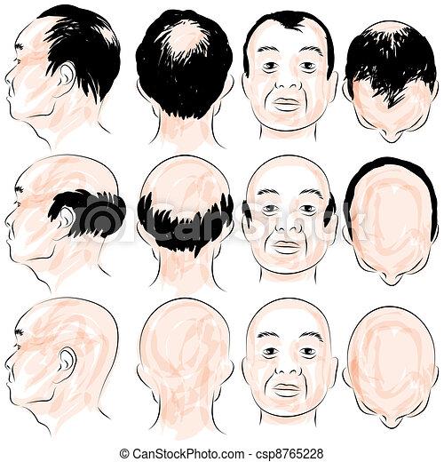 Asian Male Baldness Pattern - csp8765228