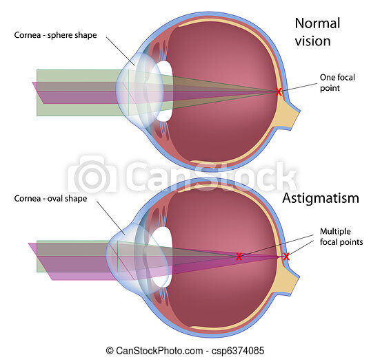 astigmatisme, eps10 - csp6374085