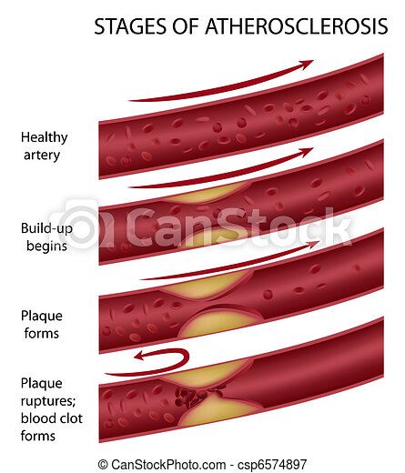 Atherosclerosis, eps8 - csp6574897