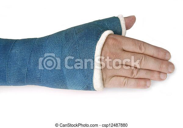 Muñeca rota, brazo con un yeso de fibra de vidrio azul - csp12487880