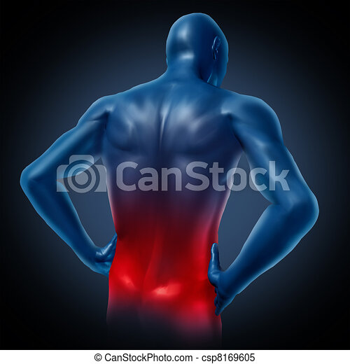Back pain - csp8169605
