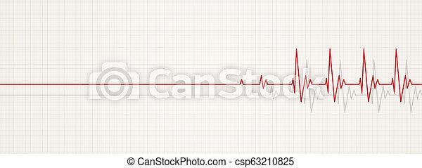 back to life ecg - csp63210825