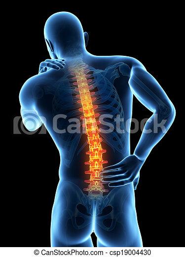 Backache - csp19004430