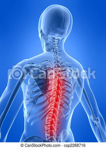 backache illustration - csp2268716