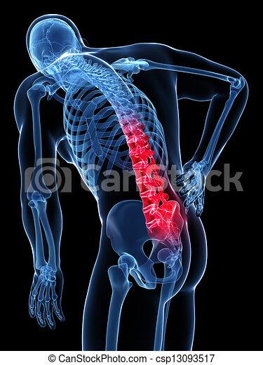 Backache male - csp13093517