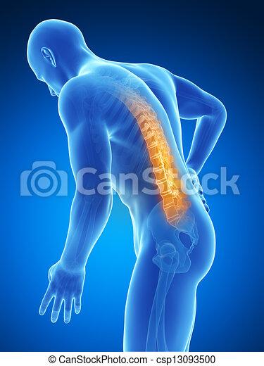 Backache male - csp13093500