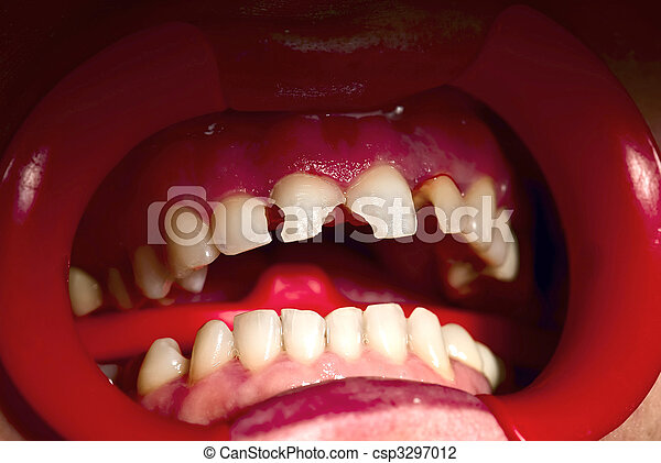 Concept Bad concept bad teeth condition closeup of human broken teeth