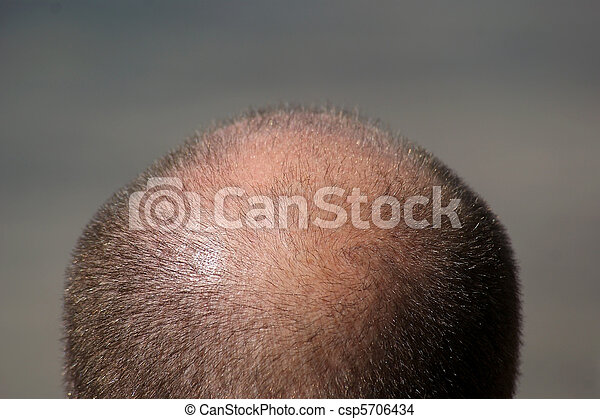 Balding Man's Head - csp5706434