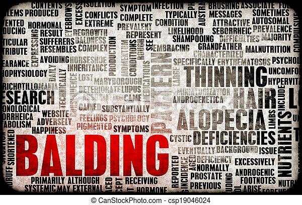 Balding - csp19046024