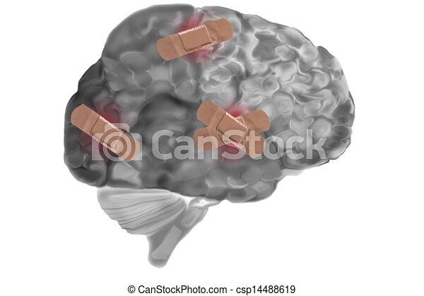 Bandages On Damaged Brain - csp14488619