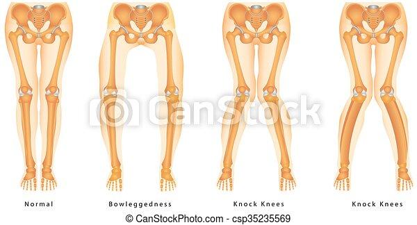 Bandy-legs. shape of the legs - genu varum, genu valgum ...