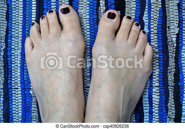 barefoot - csp40826236