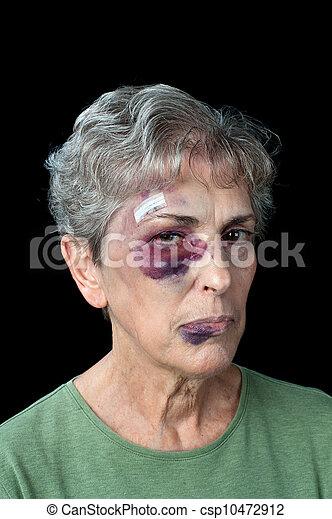 Beaten elderly woman - csp10472912