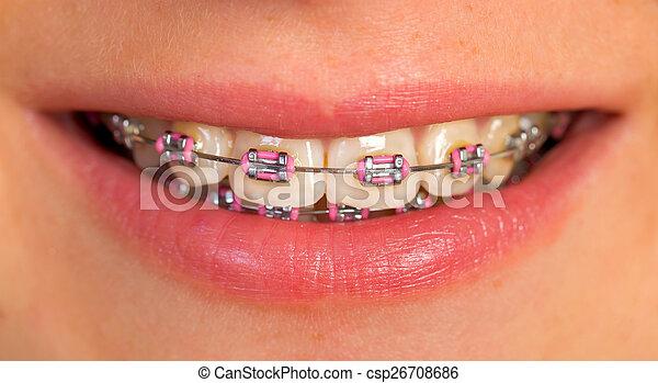 Beautiful lips - csp26708686