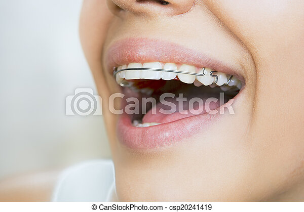 Beautiful smiling girl with retainer for teeth - csp20241419