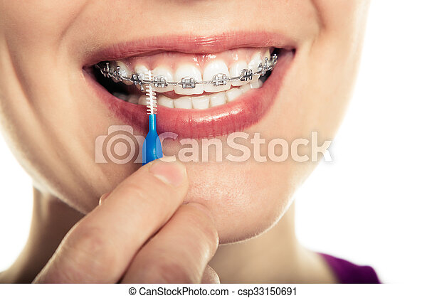 Beautiful smiling girl with retainer for teeth. - csp33150691