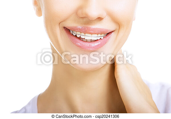 Beautiful smiling girl with retainer for teeth - csp20241306