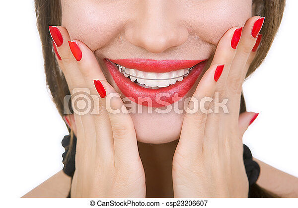 Beautiful smiling girl with retainer for teeth, close-up - csp23206607