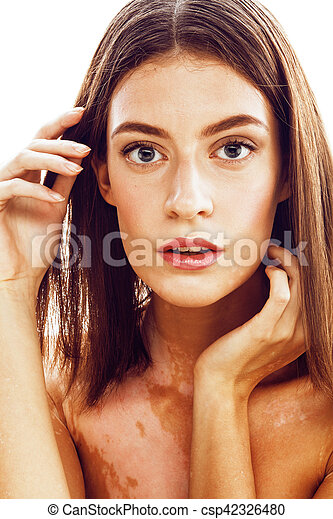 Beautiful Young Brunette Woman With Vitiligo Disease Close Up Isolated On White Positive Smiling Model Problems Concept Bad