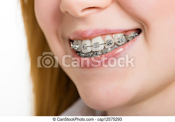 Beautiful young woman with brackets on teeth - csp12575293