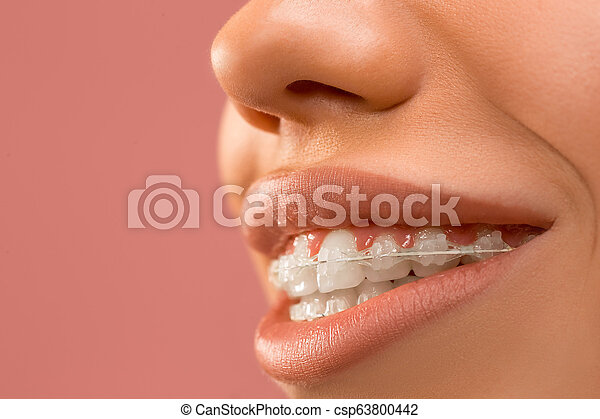 Beautiful young woman with teeth braces - csp63800442