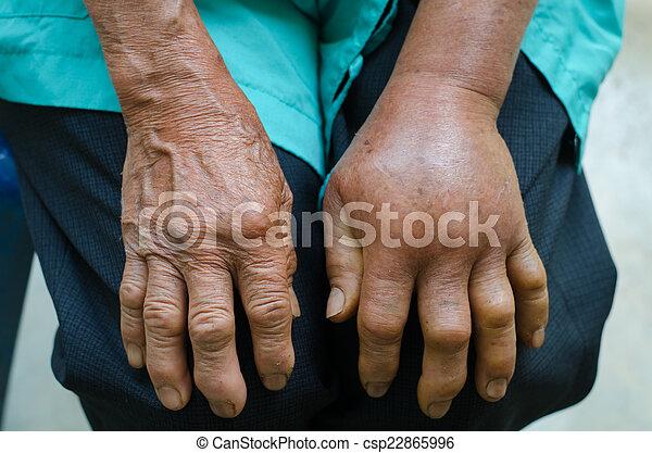 ontsteking in hand