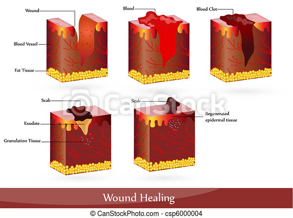 blessure, guérison - csp6000004