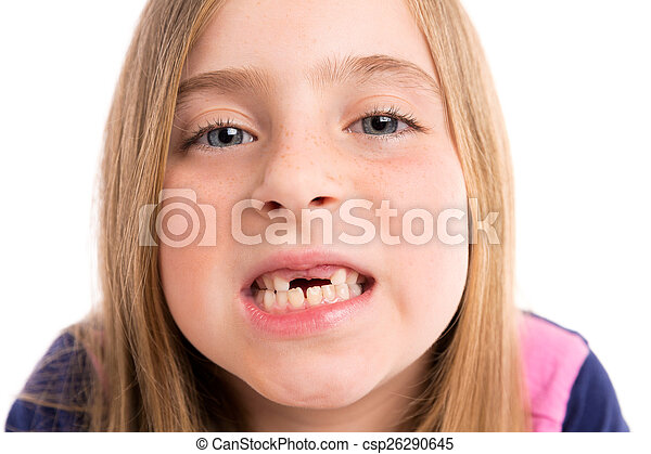 Blond indented girl showing teeth funny portrait - csp26290645