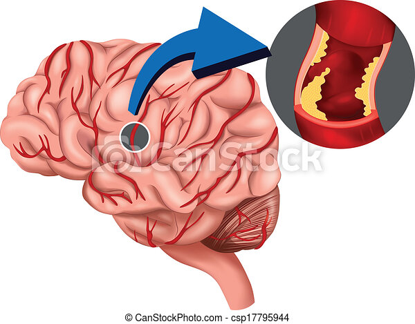 Blood Clot concept in the brain - csp17795944