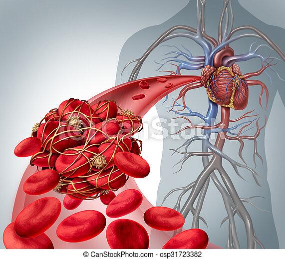 Blood Clot Risk - csp31723382