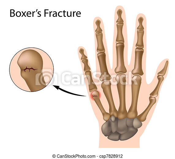 Boxer's fracture, eps8 - csp7828912