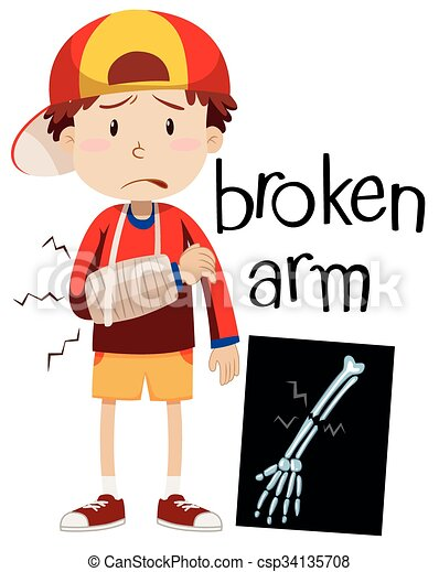 Image result for child with broken arm drawing