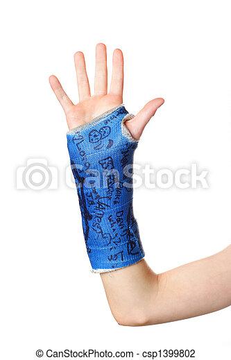 brækket arm - csp1399802