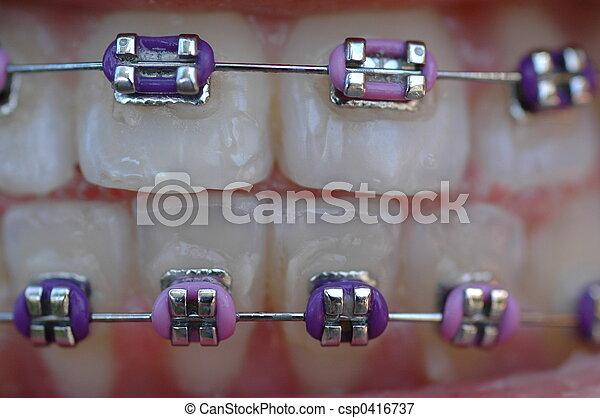 braces - csp0416737