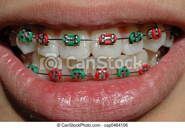 braces - csp0464106