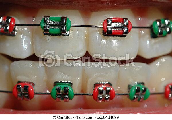 braces - csp0464099