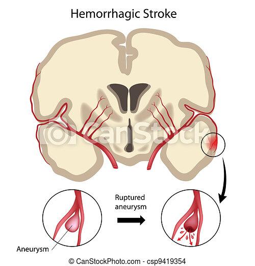 Brain hemorrhagic stroke, eps10 - csp9419354