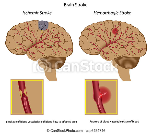 Brain stroke,  - csp6484746