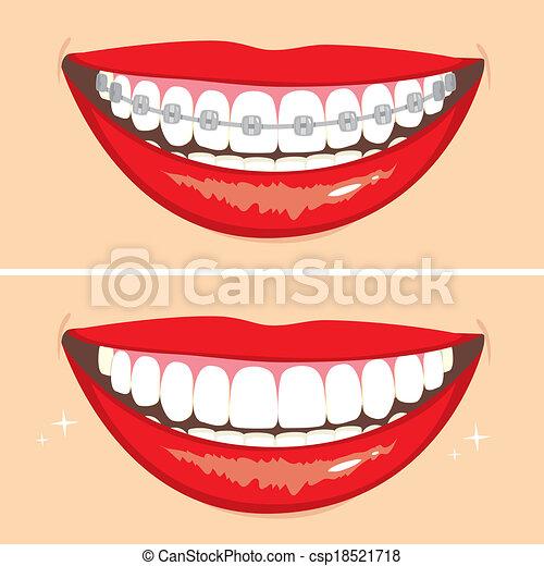 Brakets Smile - csp18521718
