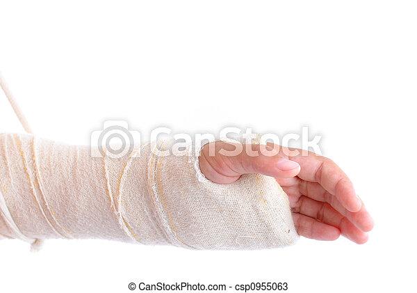 brazo roto - csp0955063