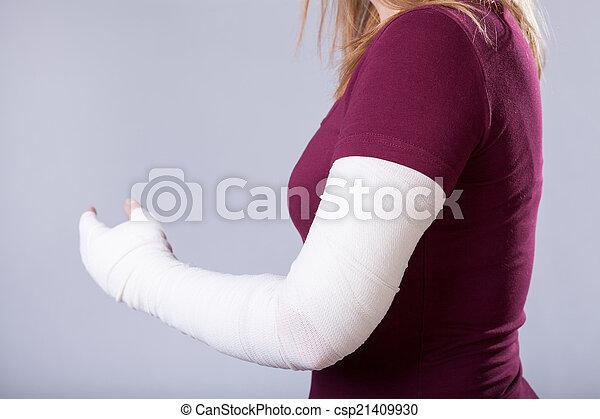 brazo roto - csp21409930
