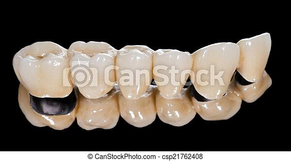 bridzs, fogászati, kerámiai - csp21762408