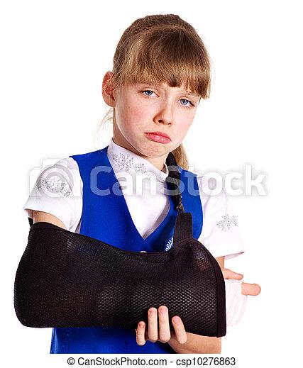 Broken arm in a cast. - csp10276863