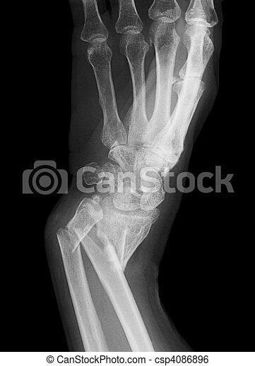 Broken forearm - csp4086896