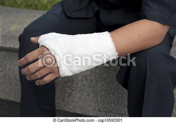 broken hand injury - csp10593301