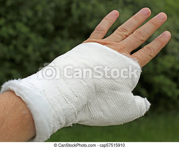 Broken Hand With The White Medical Cast After The Fracture Of Th