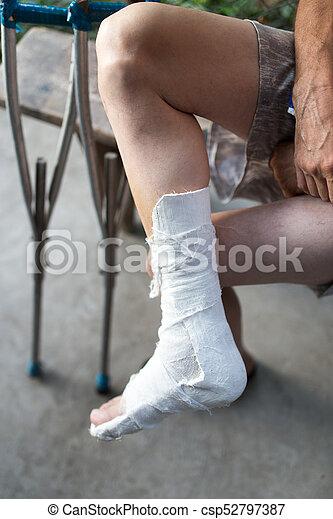 Broken Leg In A Cast Male