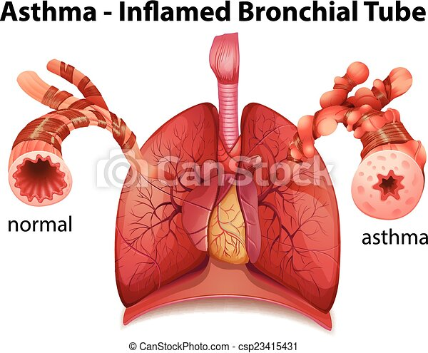 Bronchial asthma. An image showing the asthma-inflamed bronchial ...