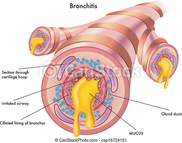 bronchitis - csp16724151
