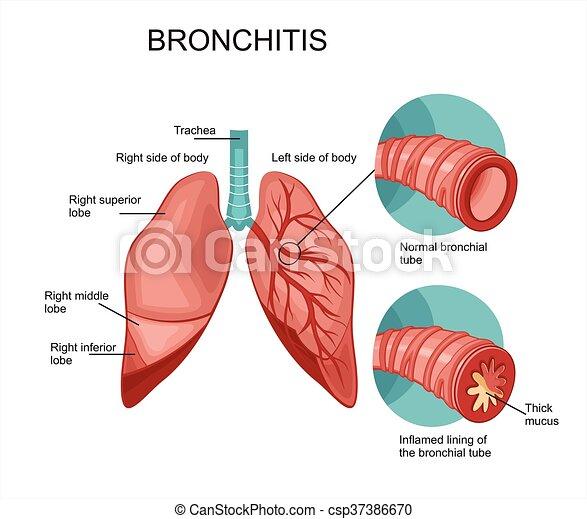 Bronchitis - csp37386670